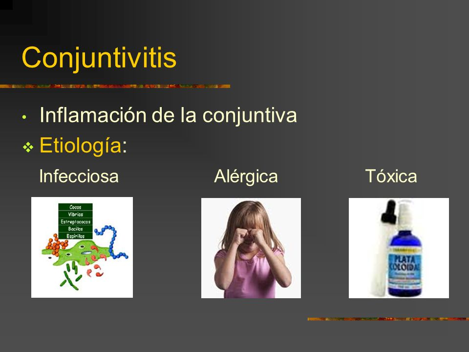 Conjuntivitis Inflamación de la conjuntiva Etiología: