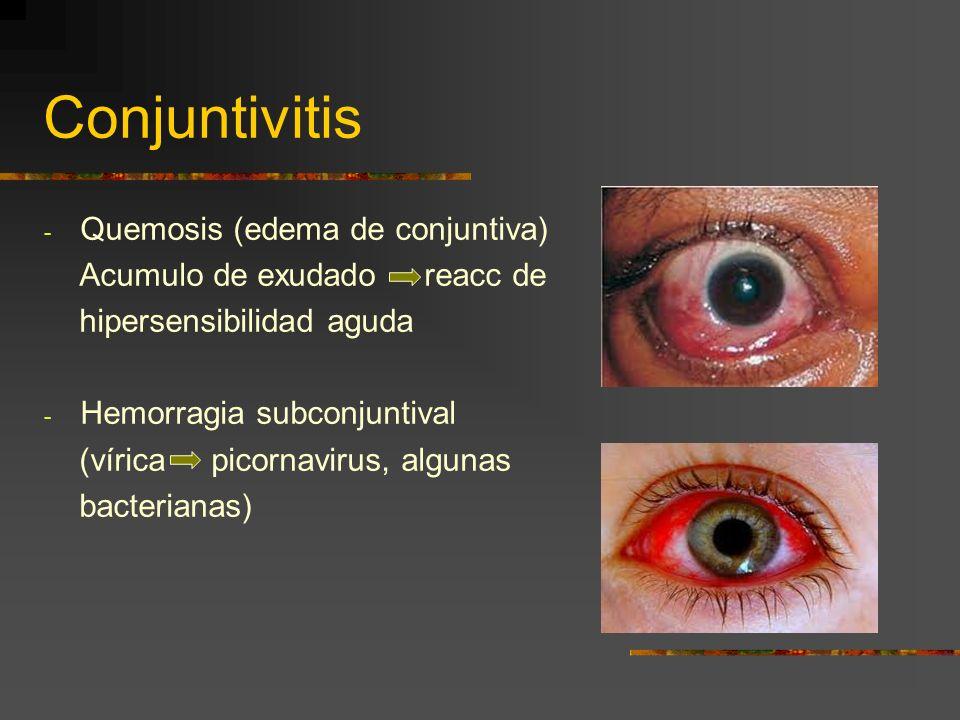 Conjuntivitis Quemosis (edema de conjuntiva)