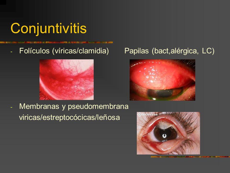 Conjuntivitis Folículos (víricas/clamidia) Papilas (bact,alérgica, LC)