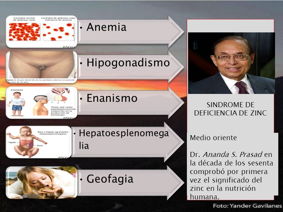SINDROME DE DEFICIENCIA DE ZINC