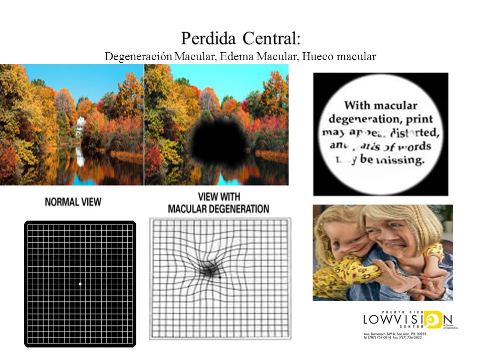 Perdida Central: Degeneración Macular, Edema Macular, Hueco macular