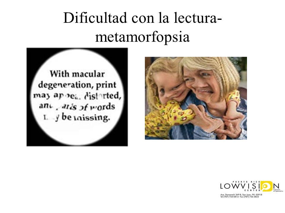 Dificultad con la lectura-metamorfopsia