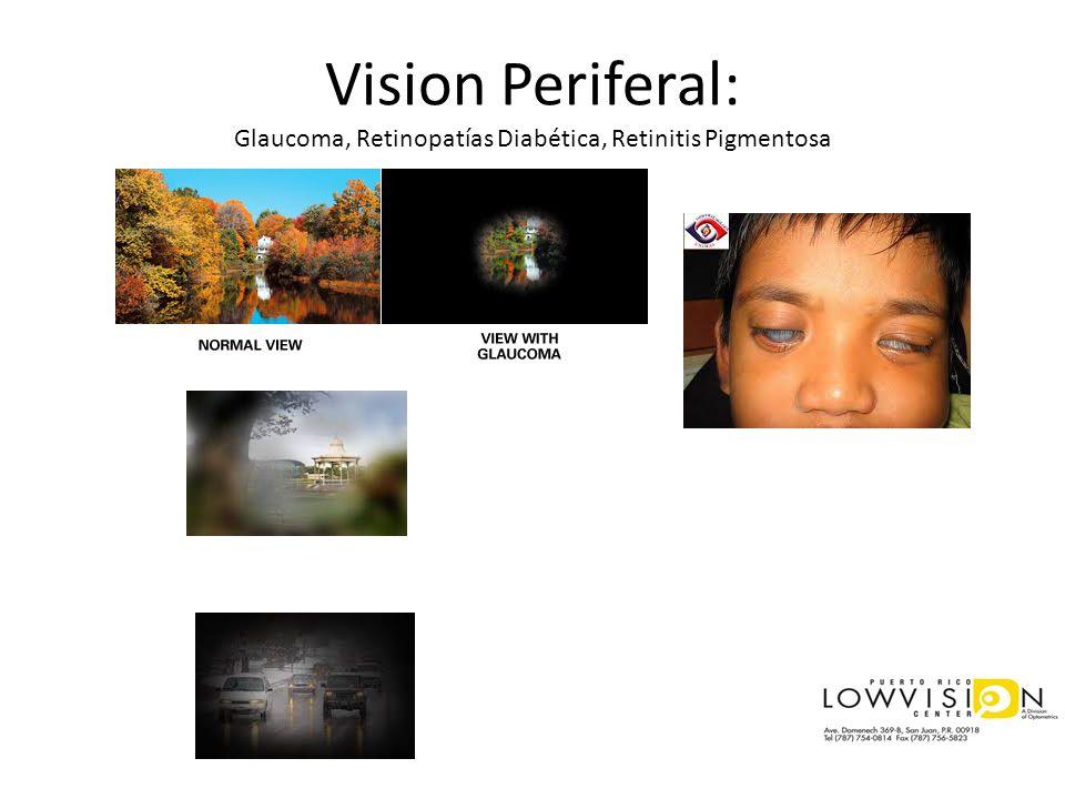 Vision Periferal: Glaucoma, Retinopatías Diabética, Retinitis Pigmentosa