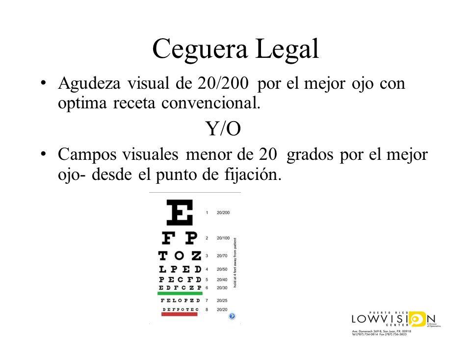 Ceguera Legal Agudeza visual de 20/200 por el mejor ojo con optima receta convencional. Y/O.