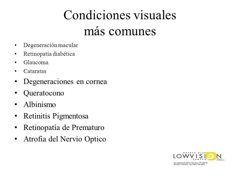 Condiciones visuales más comunes