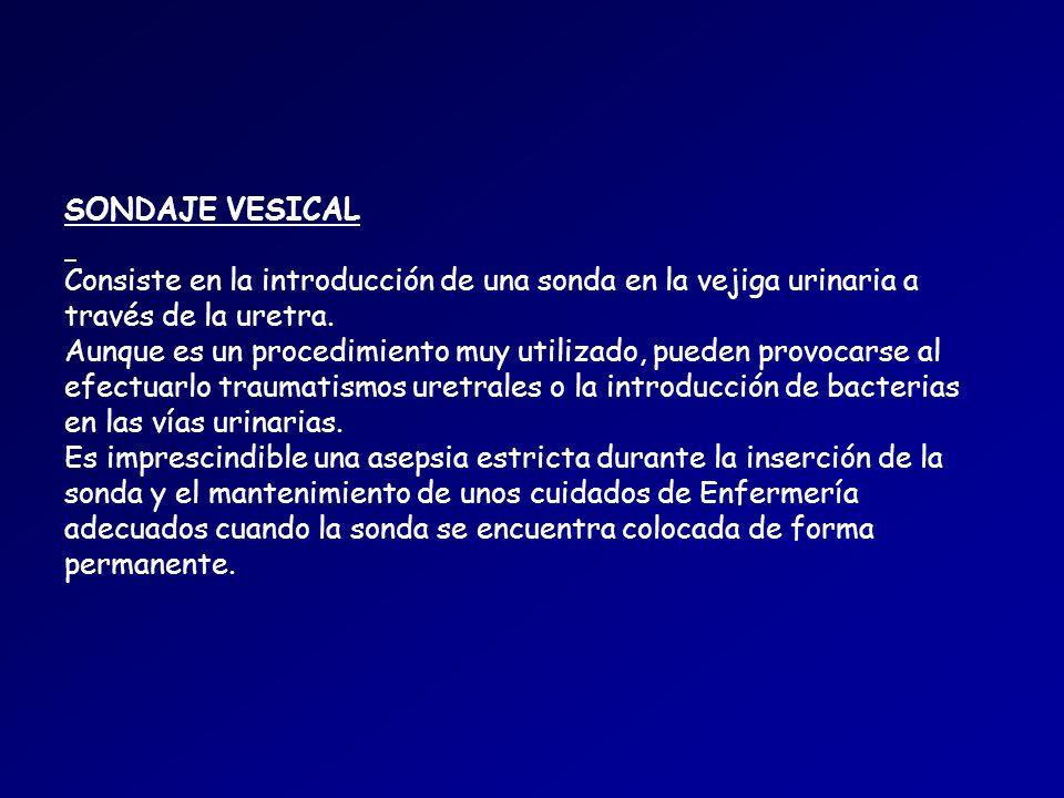 SONDAJE VESICAL Consiste en la introducción de una sonda en la vejiga urinaria a través de la uretra.