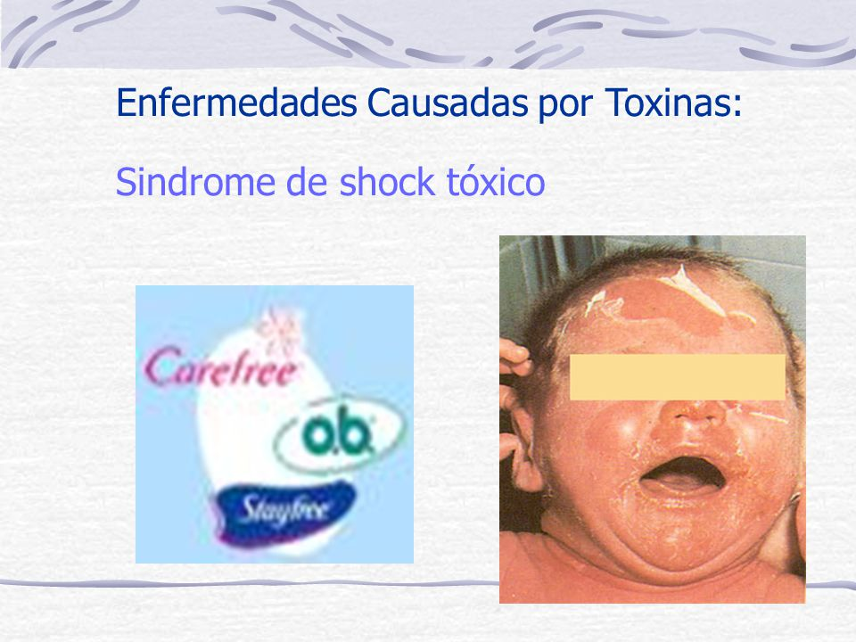 Enfermedades Causadas por Toxinas: