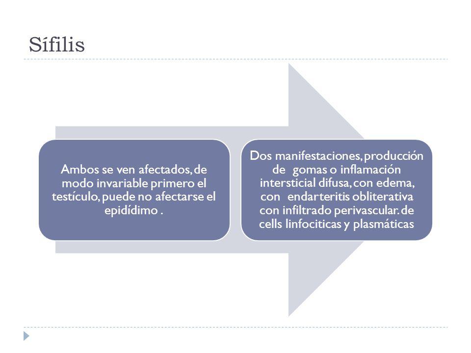 Sífilis Ambos se ven afectados, de modo invariable primero el testículo, puede no afectarse el epidídimo .