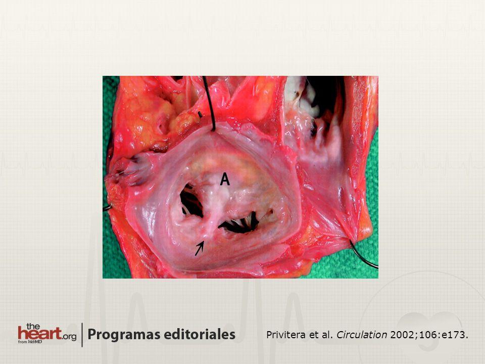 Privitera et al. Circulation 2002;106:e173.