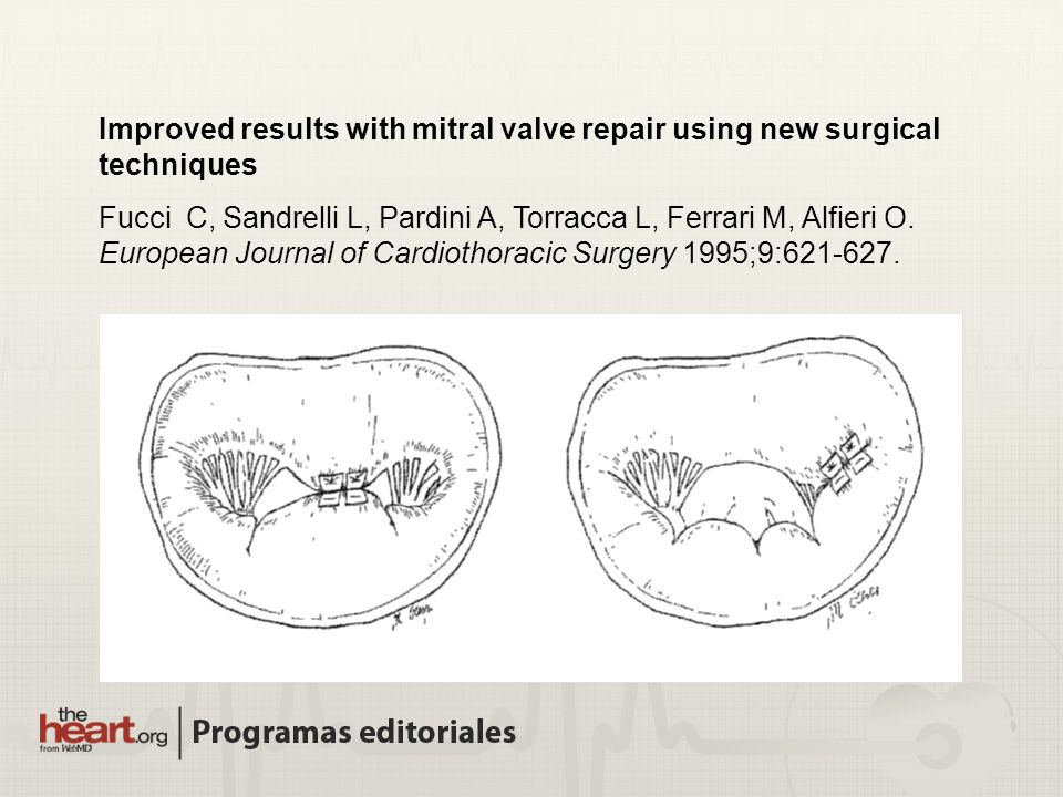 Improved results with mitral valve repair using new surgical techniques