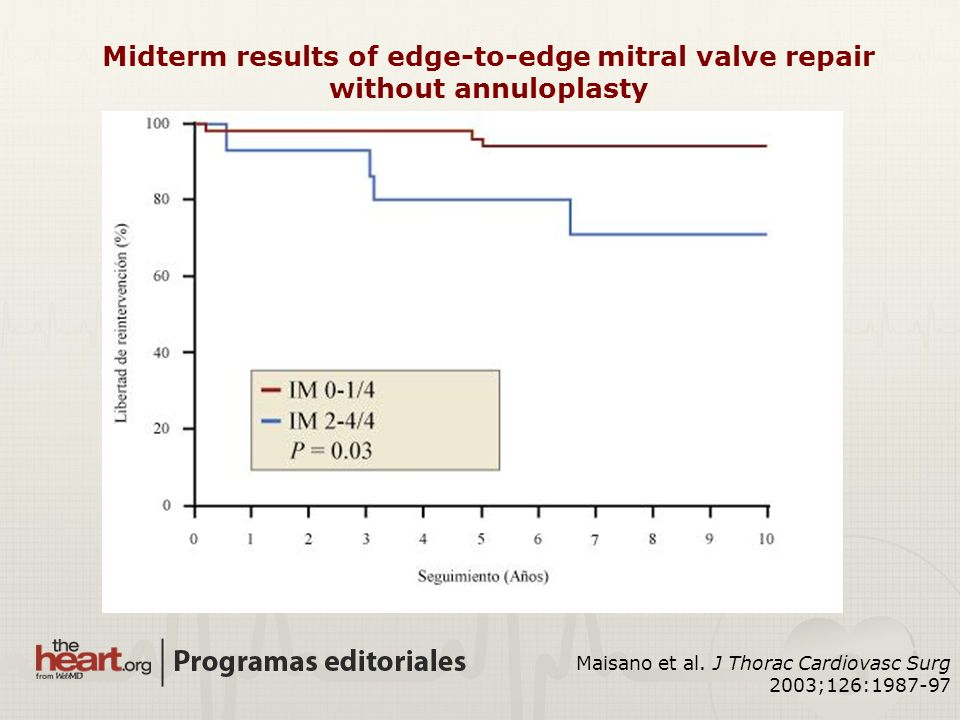 Midterm results of edge-to-edge mitral valve repair without annuloplasty