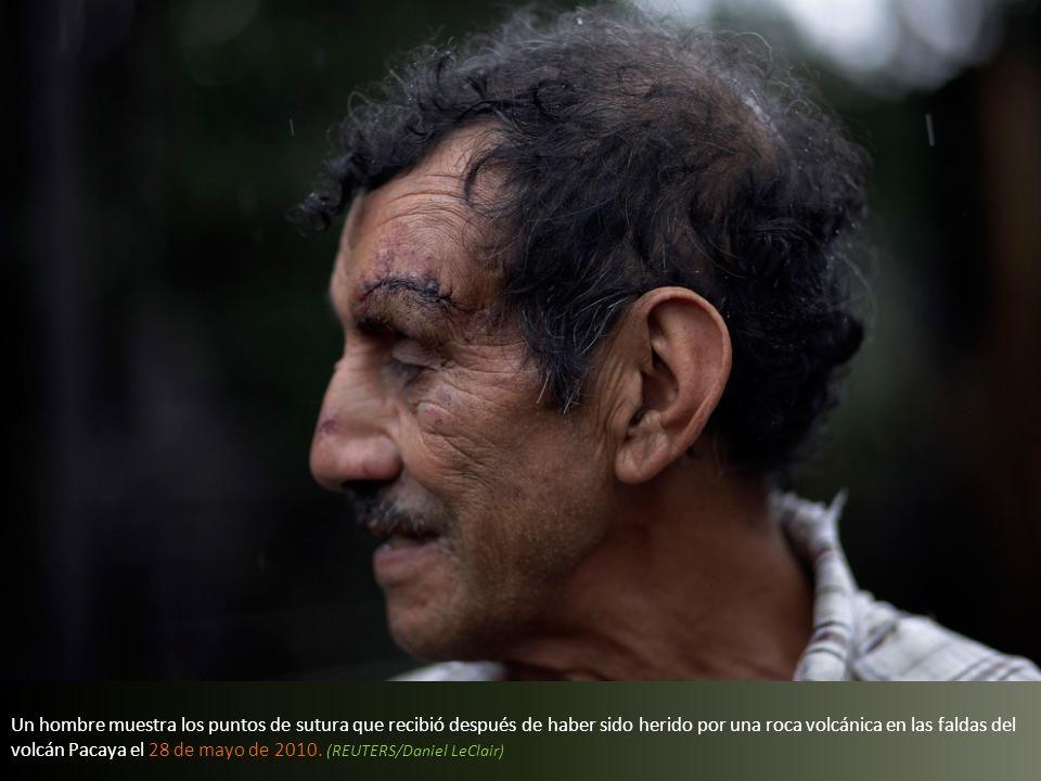 Un hombre muestra los puntos de sutura que recibió después de haber sido herido por una roca volcánica en las faldas del volcán Pacaya el 28 de mayo de 2010.