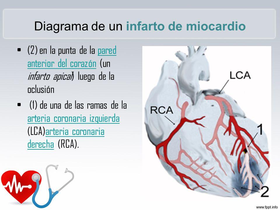 INFARTO AGUDO DE MIOCARDIO - ppt video online descargar