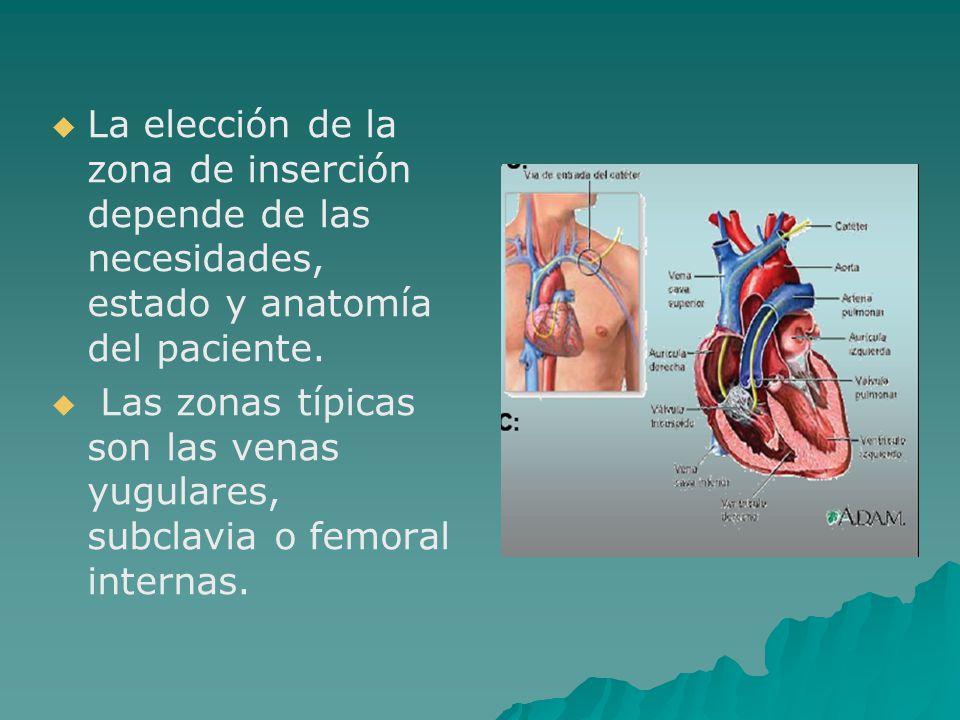La elección de la zona de inserción depende de las necesidades, estado y anatomía del paciente.