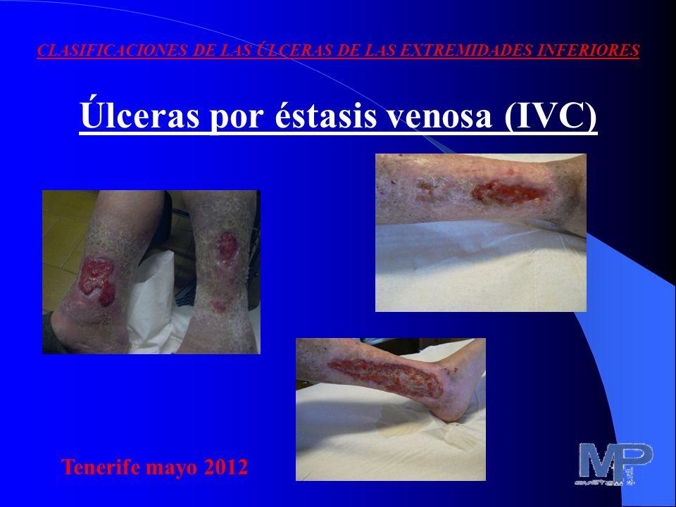 Úlceras por éstasis venosa (IVC)