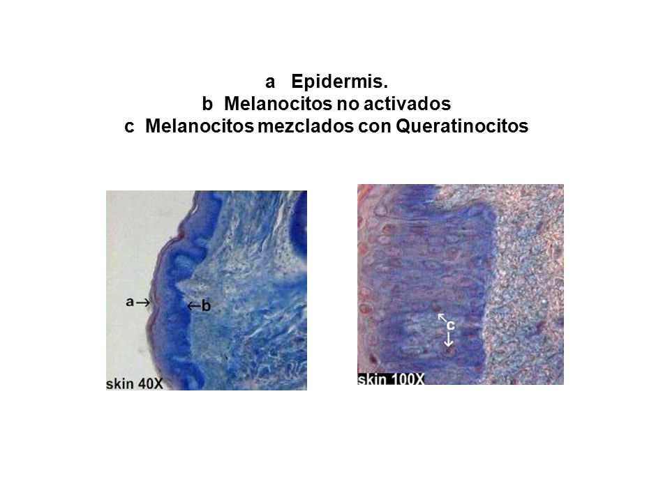 a Epidermis. b Melanocitos no activados c Melanocitos mezclados con Queratinocitos