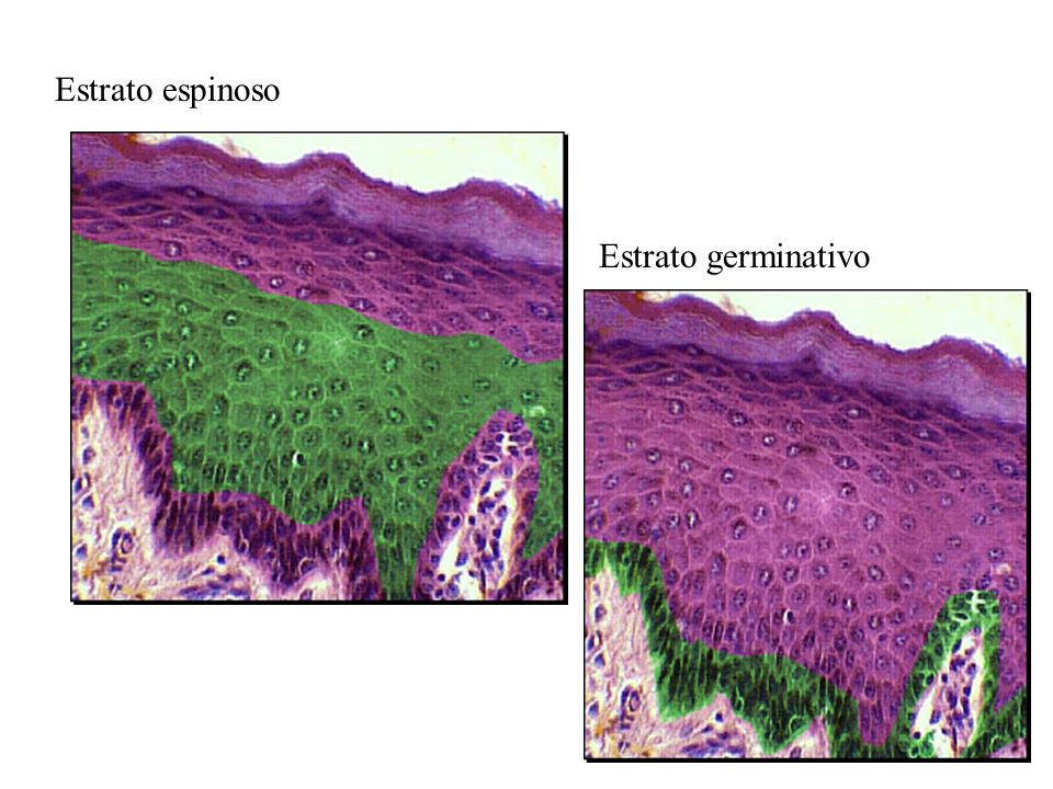 Estrato espinoso Estrato germinativo