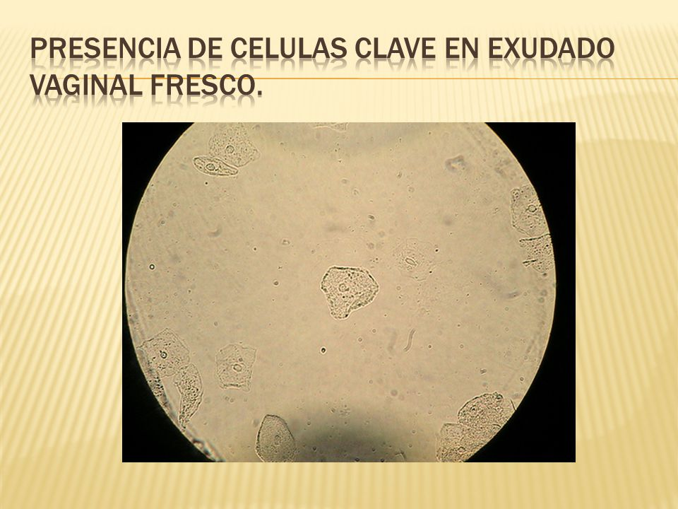 Presencia de celulas clave en exudado vaginal fresco.