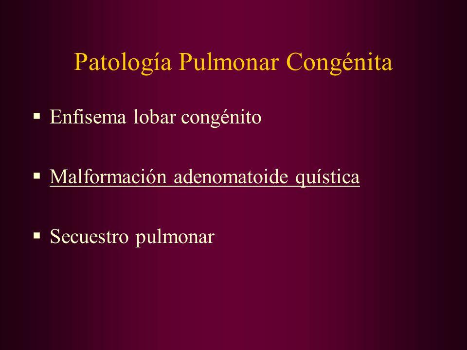 El pulmón. Anatomía. Histología. Patología pulmonar aguda ppt.