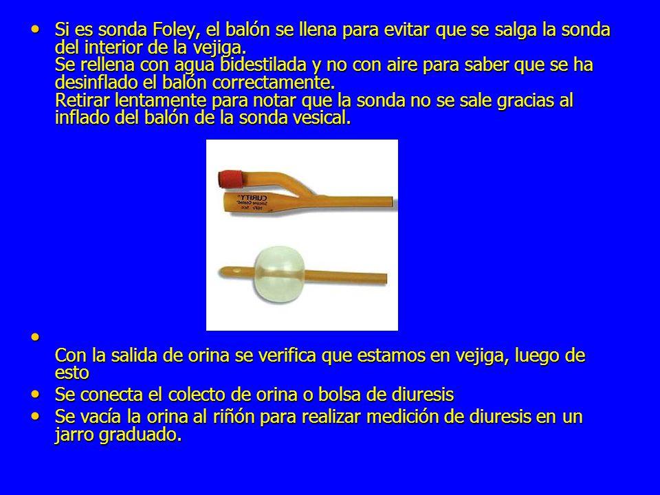 Si es sonda Foley, el balón se llena para evitar que se salga la sonda del interior de la vejiga. Se rellena con agua bidestilada y no con aire para saber que se ha desinflado el balón correctamente. Retirar lentamente para notar que la sonda no se sale gracias al inflado del balón de la sonda vesical.