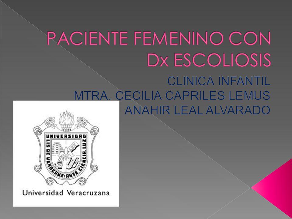 PACIENTE FEMENINO CON Dx ESCOLIOSIS