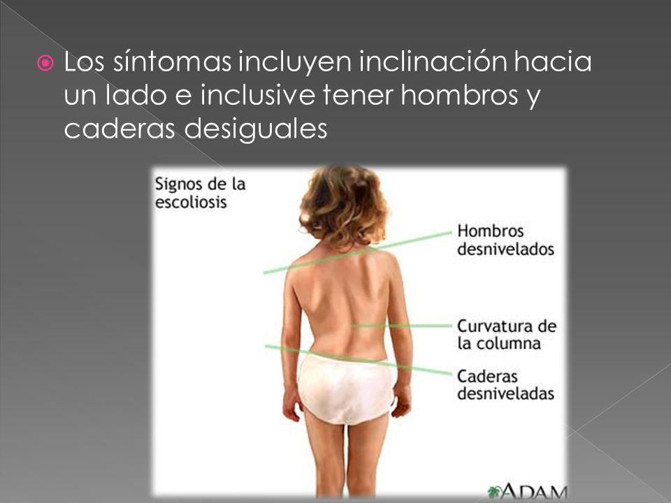 Los síntomas incluyen inclinación hacia un lado e inclusive tener hombros y caderas desiguales