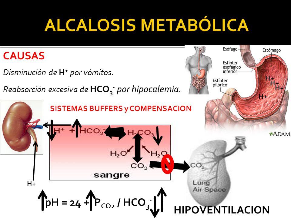 ALCALOSIS METABÓLICA CAUSAS pH = 24 + PCO2 / HCO3- HIPOVENTILACION