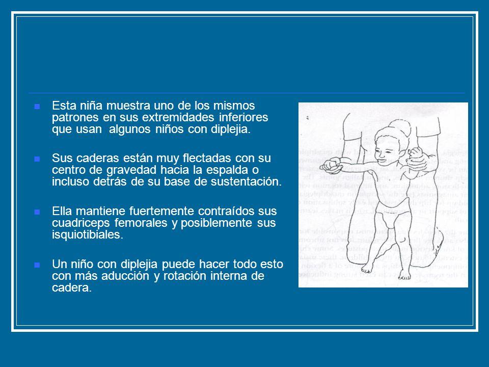 Esta niña muestra uno de los mismos patrones en sus extremidades inferiores que usan algunos niños con diplejia.