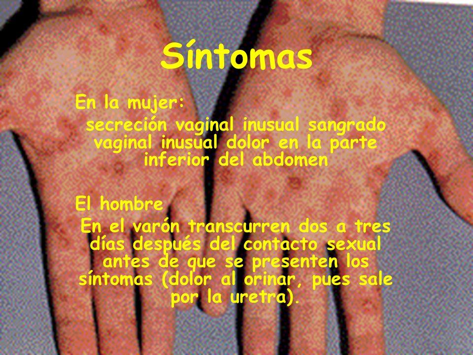 Síntomas En la mujer: secreción vaginal inusual sangrado vaginal inusual dolor en la parte inferior del abdomen.