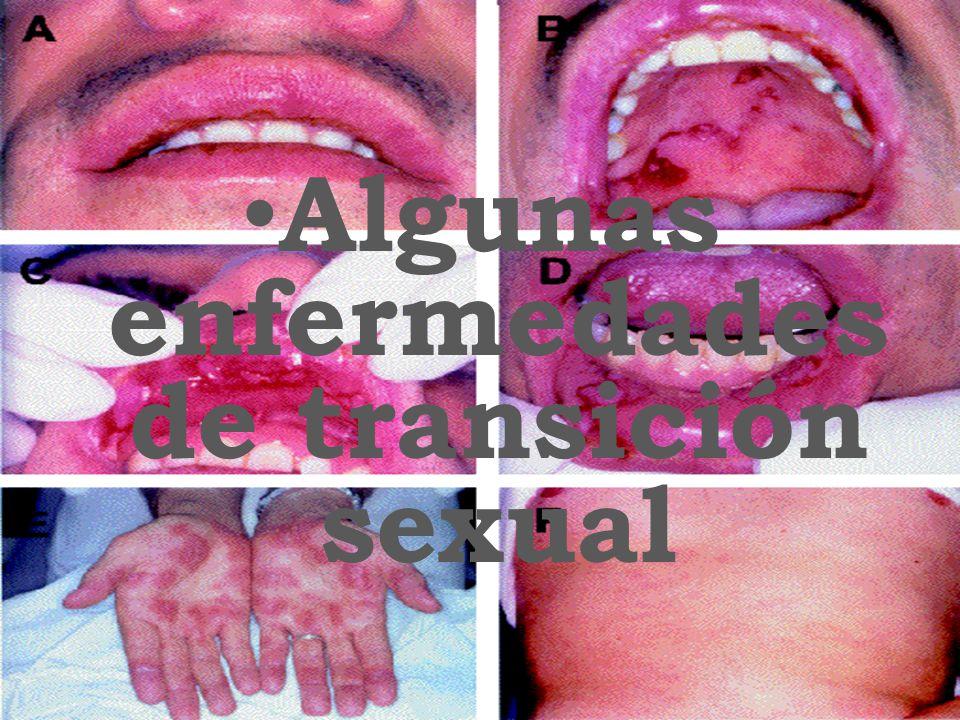 Algunas enfermedades de transición sexual