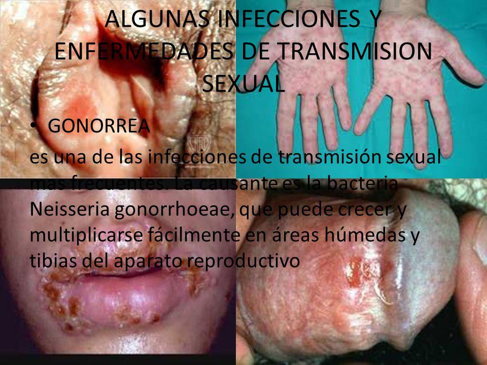 ALGUNAS INFECCIONES Y ENFERMEDADES DE TRANSMISION SEXUAL