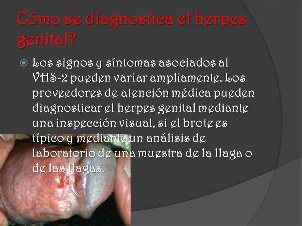 Cómo se diagnostica el herpes genital