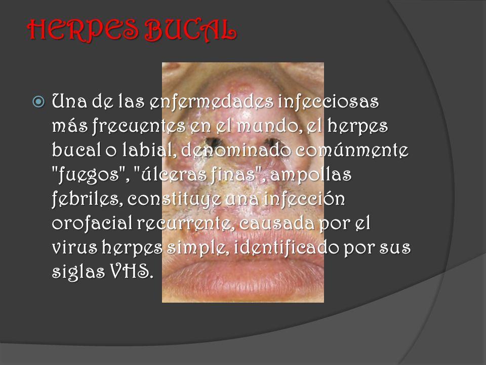 HERPES BUCAL