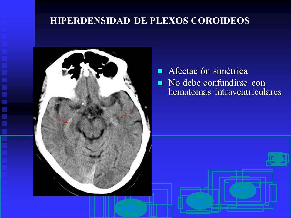 Excelente Plexos Coroideos Modelo - Imágenes de Anatomía Humana ...