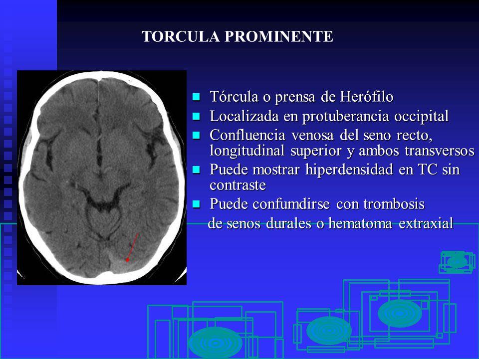 PSEUDOLESIONES EN NEUROIMAGEN - ppt video online descargar - Linkis.com