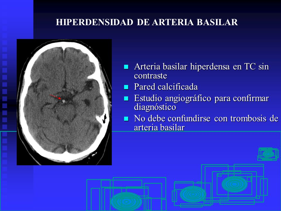 PSEUDOLESIONES EN NEUROIMAGEN - ppt video online descargar - Linkis.com