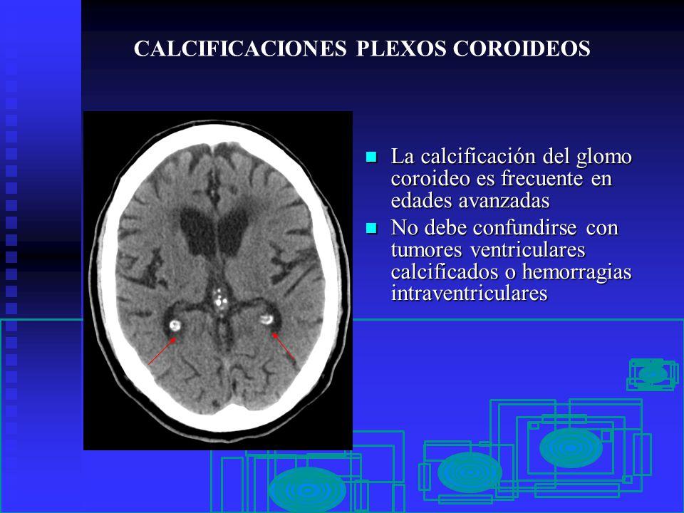 Moderno Plexos Coroideos Patrón - Anatomía de Las Imágenesdel Cuerpo ...