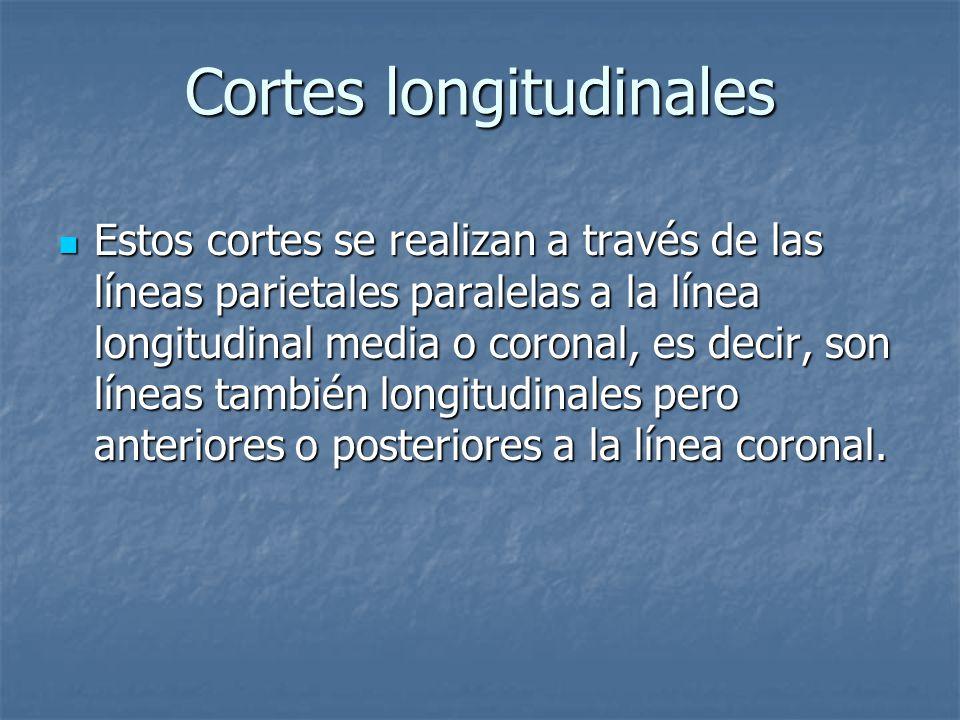 Cortes longitudinales