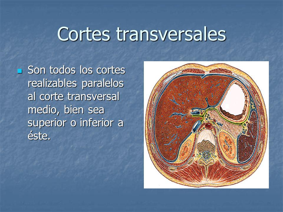Cortes transversales Son todos los cortes realizables paralelos al corte transversal medio, bien sea superior o inferior a éste.