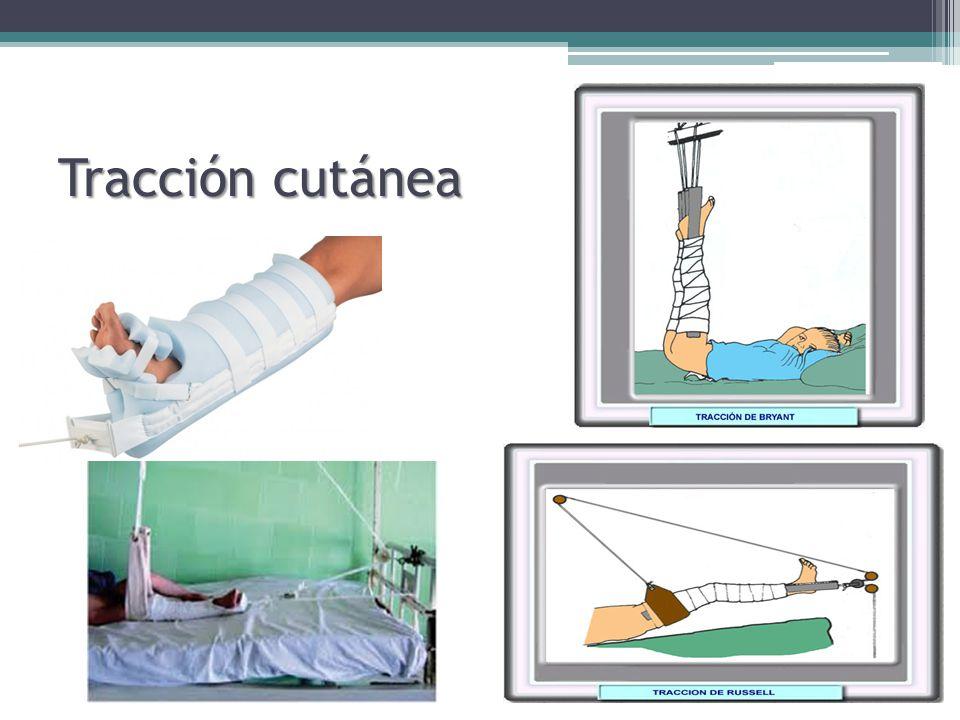 Cuidados de enfermería en pacientes con tracción ...