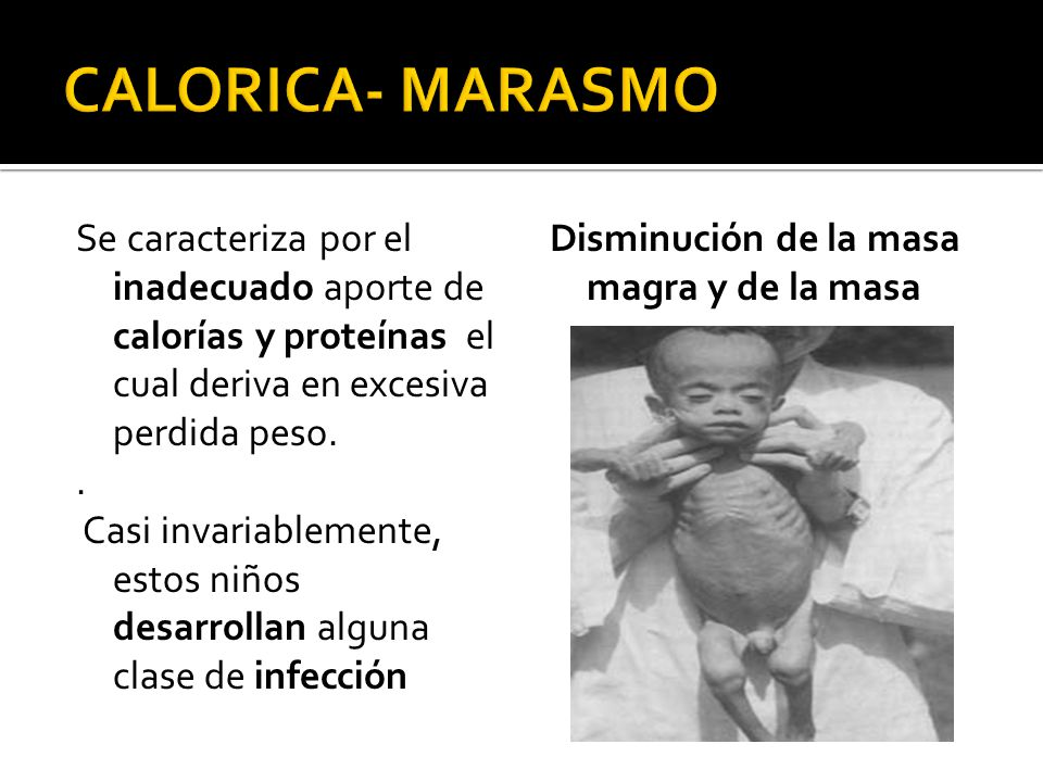 CALORICA- MARASMO
