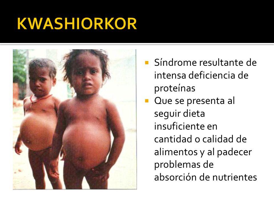 KWASHIORKOR Síndrome resultante de intensa deficiencia de proteínas