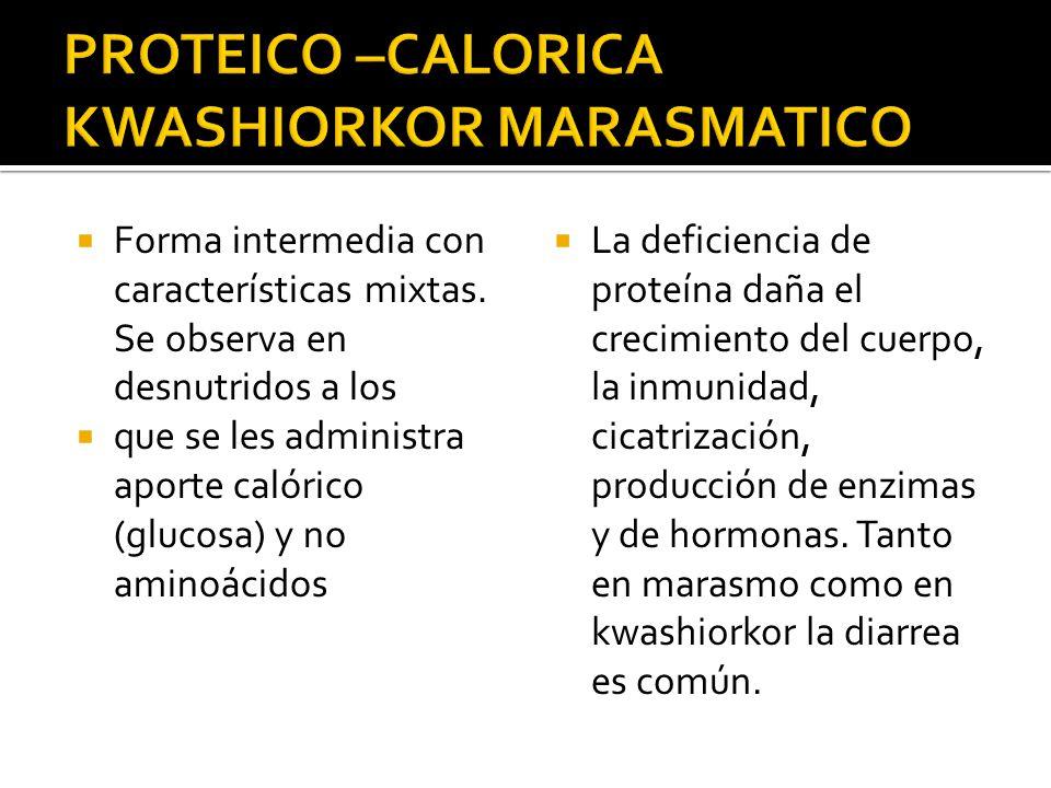 PROTEICO –CALORICA KWASHIORKOR MARASMATICO