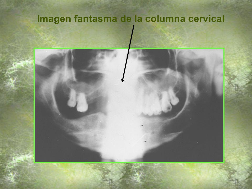 Increíble Anatomía De Los Fantasmas Friso - Imágenes de Anatomía ...