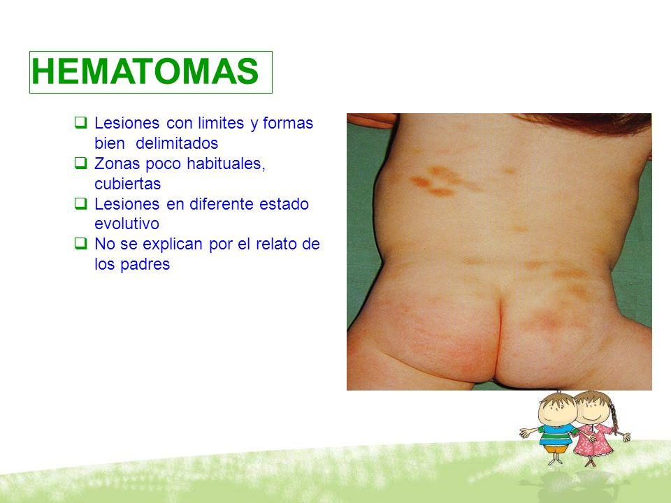 Maltrato físico HEMATOMAS