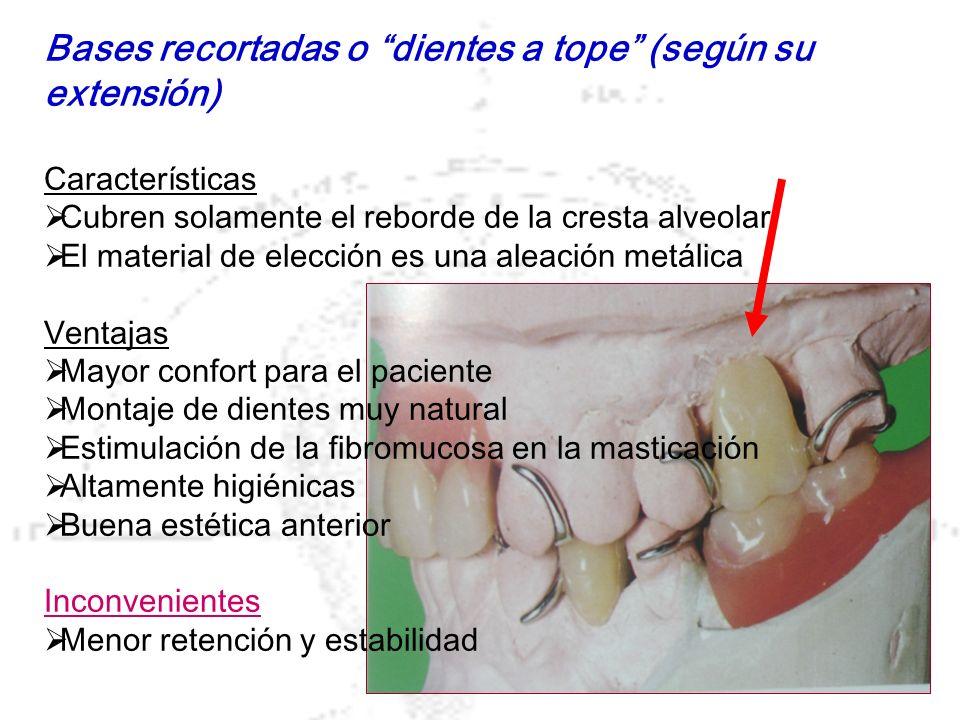 Bases recortadas o dientes a tope (según su extensión)