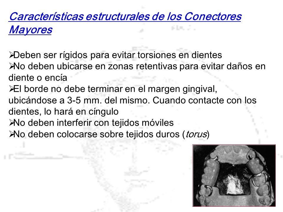 Características estructurales de los Conectores Mayores