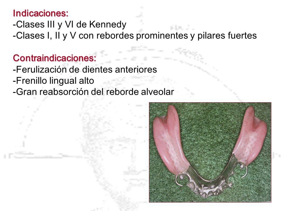 Indicaciones: -Clases III y VI de Kennedy. -Clases I, II y V con rebordes prominentes y pilares fuertes.