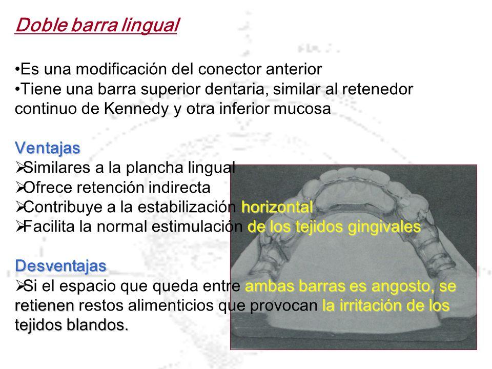 Doble barra lingual Es una modificación del conector anterior
