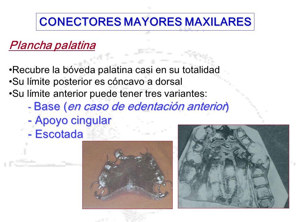 CONECTORES MAYORES MAXILARES
